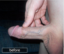 My Penis before